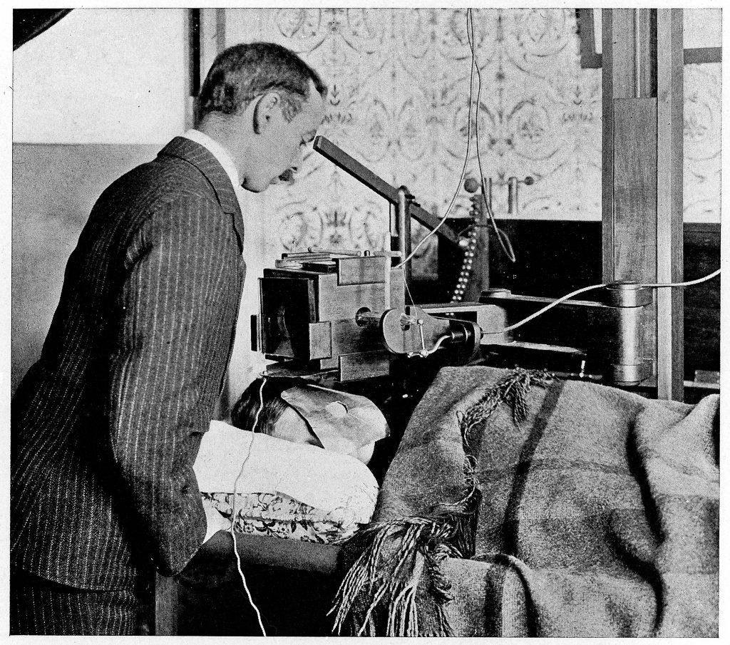Так проводилась рентгенотерапия в 1902 году. Для без- опасности вокруг вакуумная трубка прикрыта специальным щитом
